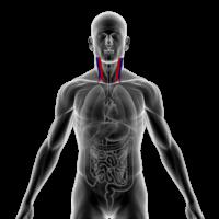 Anatomical image of human carotid arteries.